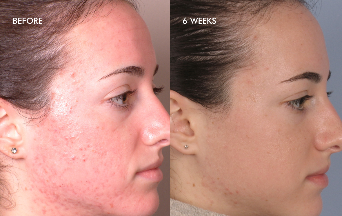 before-after-acne-two (1)