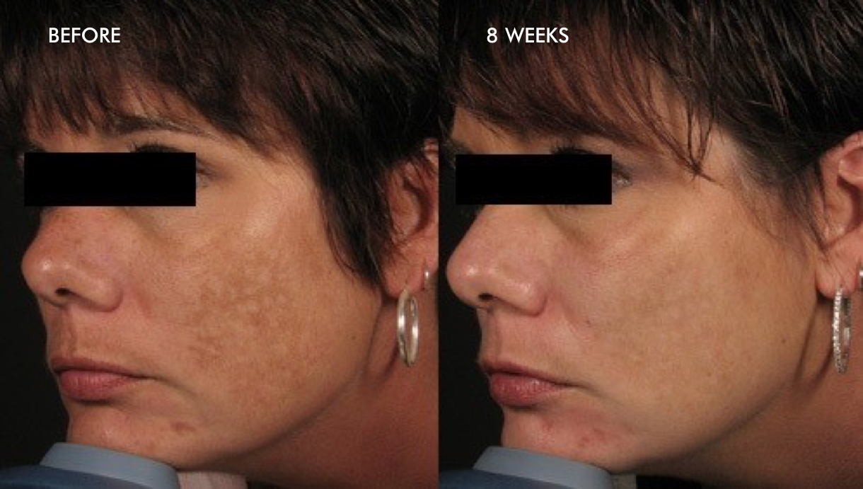 before-after-melasma